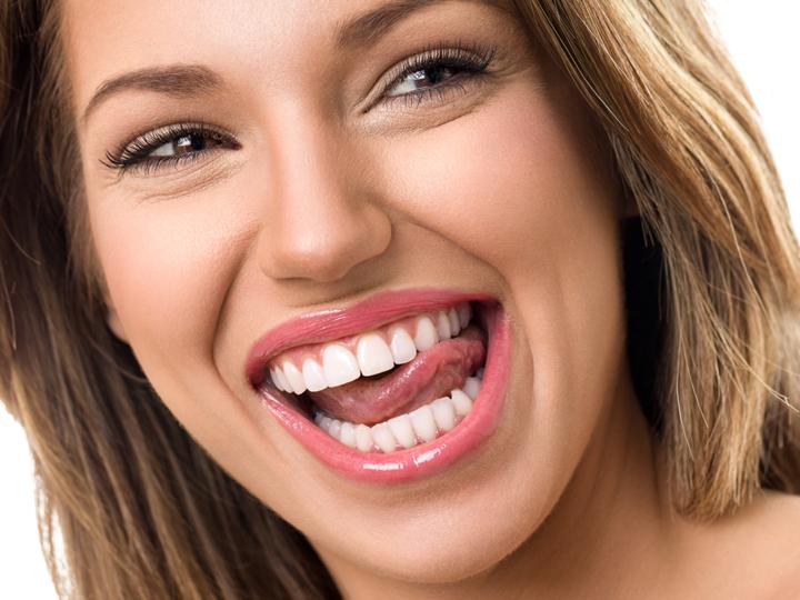 Wat is de oorzaak van gele tanden?